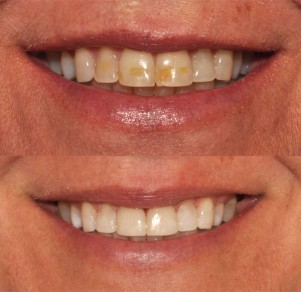 Redding Teeth Whitening Bleaching Treatments Exceptional Smiles